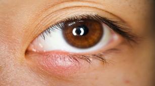 Cara Mencegah Stye on Eyelid - Cara Sederhana untuk Menyembuhkan mengoleskan krim topikal, yang dapat