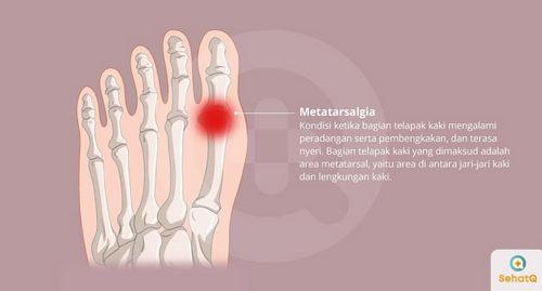 Gejala Cedera Lengkungan Aorta dapat dibuat untuk