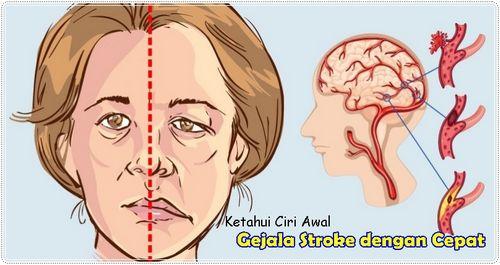 Gejala Stroke - Yang Harus Diperhatikan Saat Anda Mengalami Stroke karena suatu kondisi