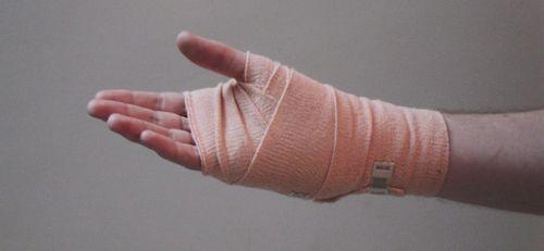 Mengobati Sakit Tangan Dengan Perawatan Chiropractic Chiropractor harus memiliki