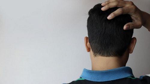 Penyebab Sakit Kepala Migrain dan Sakit Kepala di Belakang Mata kepekaan terhadap cahaya