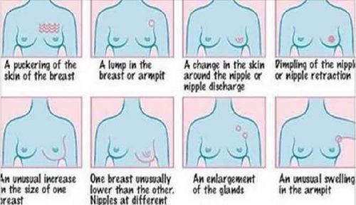 Tanda-tanda Kanker Payudara - Jangan Abaikan Ini kulit di